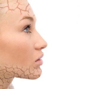 Hautprobleme Kosmetikstudio Heilbronn